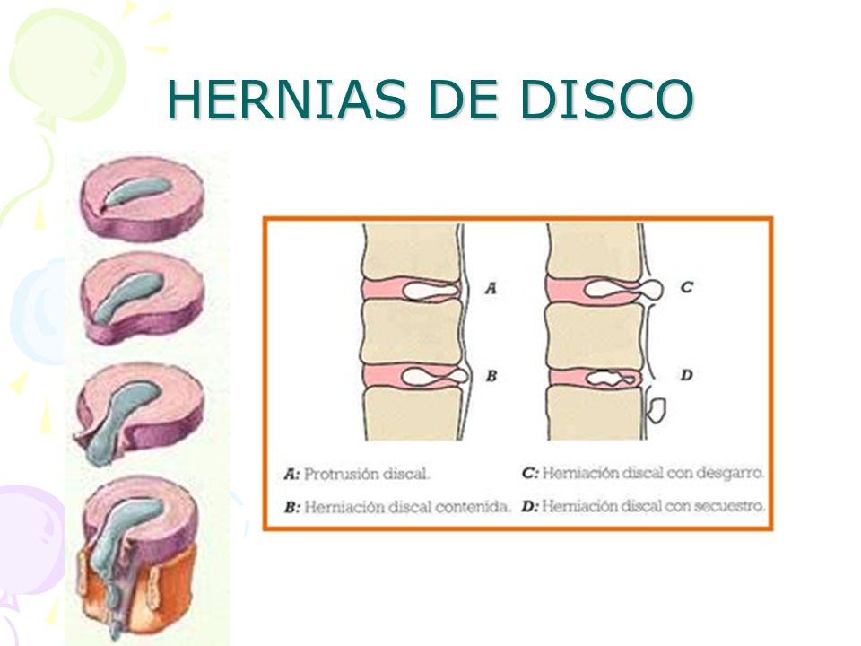 HERNIAS DE DISCO