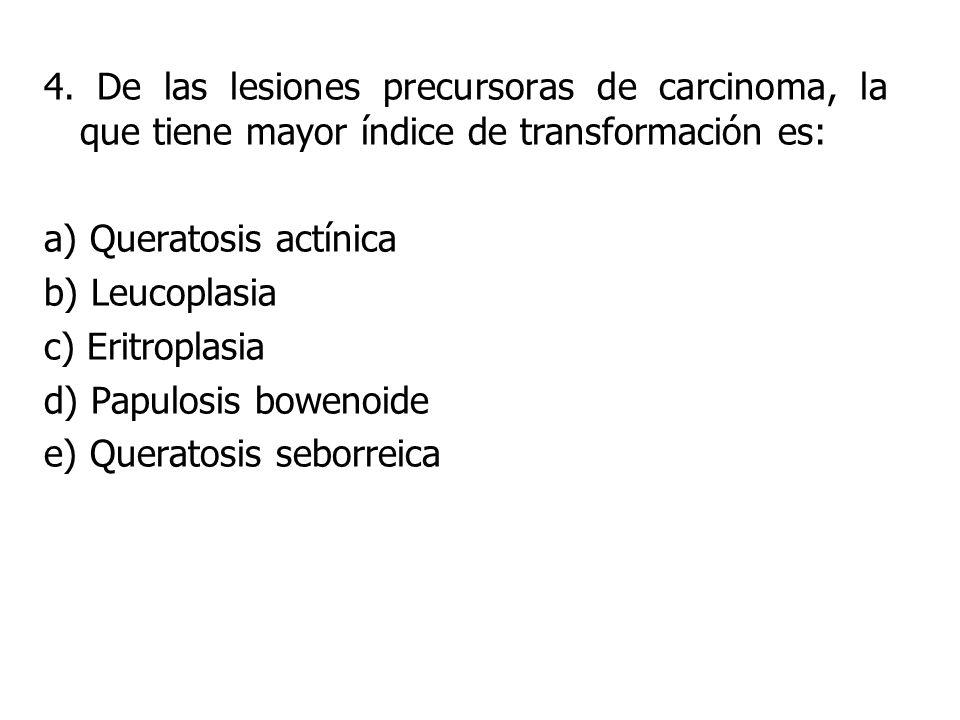 4. De las lesiones precursoras de carcinoma, la que tiene mayor índice de transformación es:
