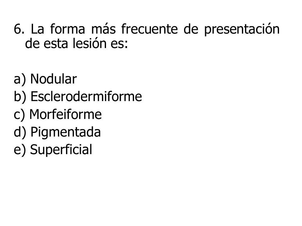 6. La forma más frecuente de presentación de esta lesión es: