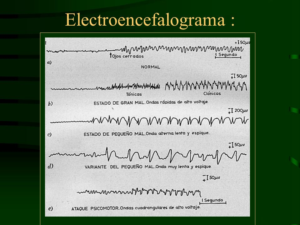 Electroencefalograma :