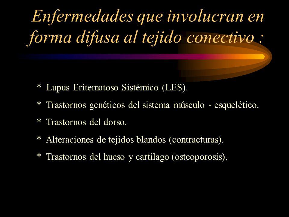 Enfermedades que involucran en forma difusa al tejido conectivo :