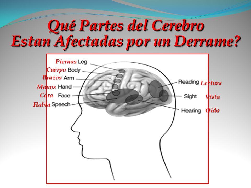 Qué Partes del Cerebro Estan Afectadas por un Derrame
