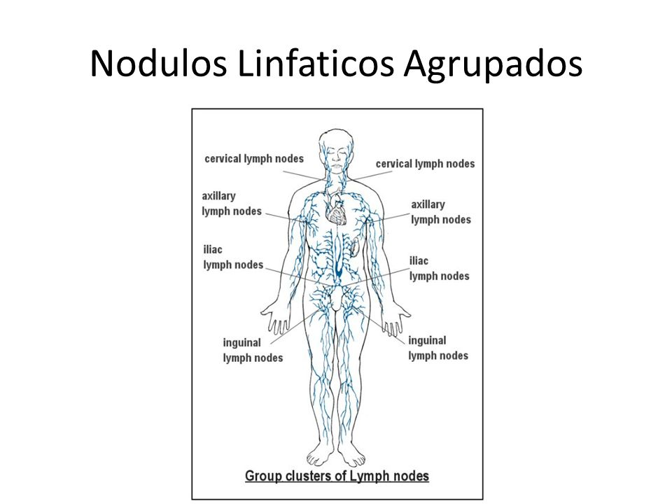 Dorable Imágenes De Ganglios Linfáticos Friso - Anatomía de Las ...