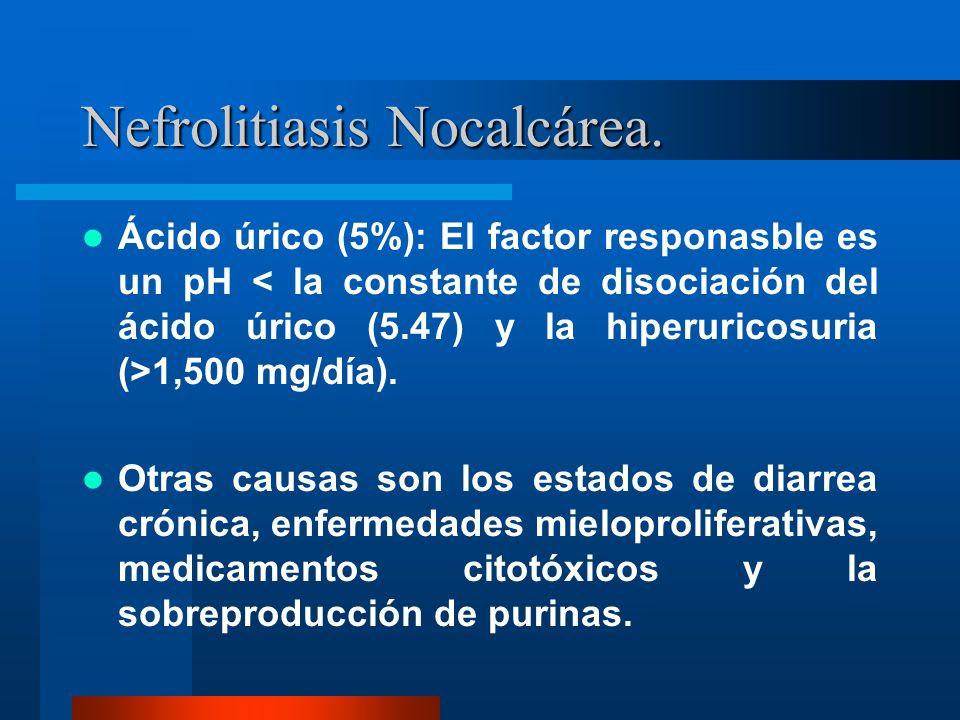 Nefrolitiasis Nocalcárea.