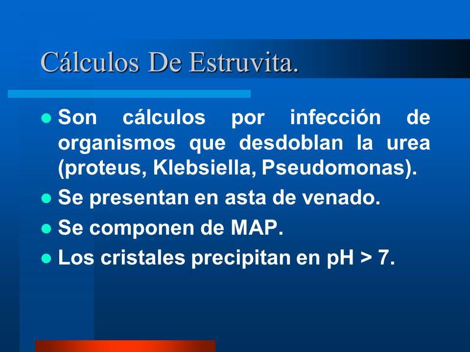 Cálculos De Estruvita. Son cálculos por infección de organismos que desdoblan la urea (proteus, Klebsiella, Pseudomonas).