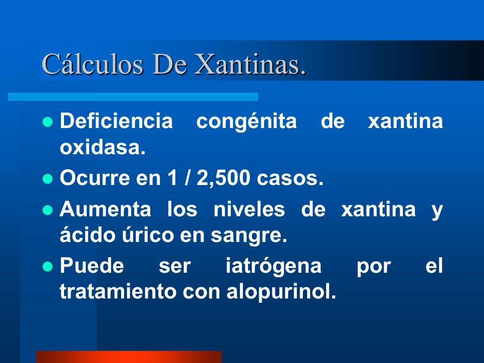 Cálculos De Xantinas. Deficiencia congénita de xantina oxidasa.