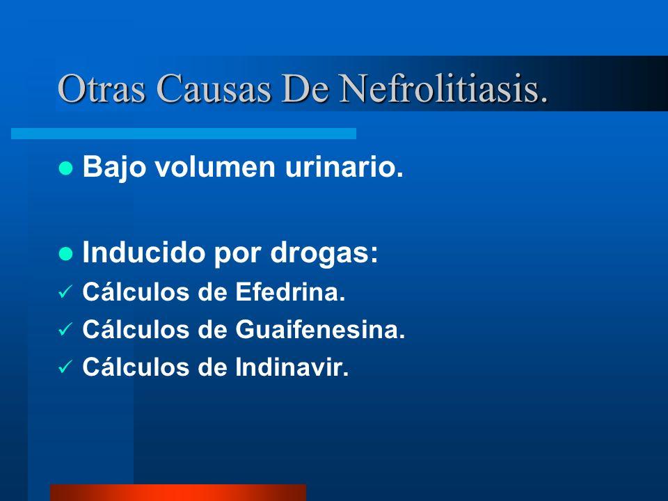 Otras Causas De Nefrolitiasis.