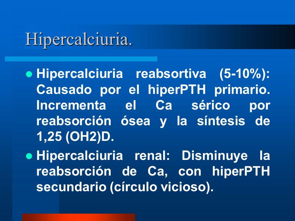 Hipercalciuria.