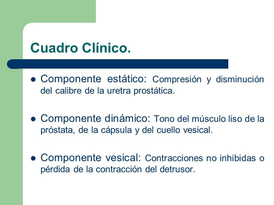 Cuadro Clínico. Componente estático: Compresión y disminución del calibre de la uretra prostática.
