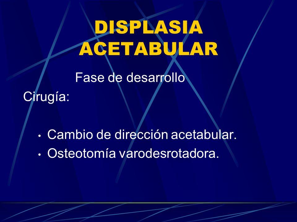 DISPLASIA ACETABULAR Fase de desarrollo Cirugía: