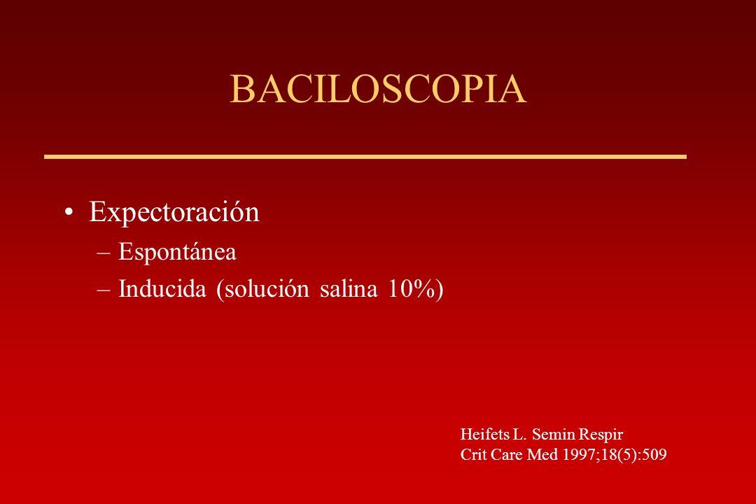 BACILOSCOPIA Expectoración Espontánea Inducida (solución salina 10%)