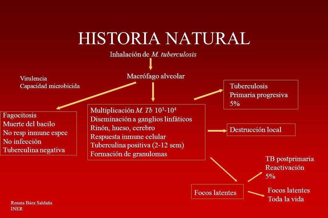 HISTORIA NATURAL Inhalación de M. tuberculosis Macrófago alveolar