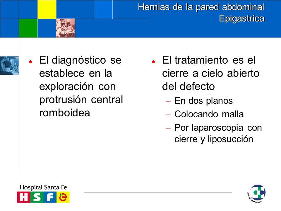 Hernias de la pared abdominal Epigastrica
