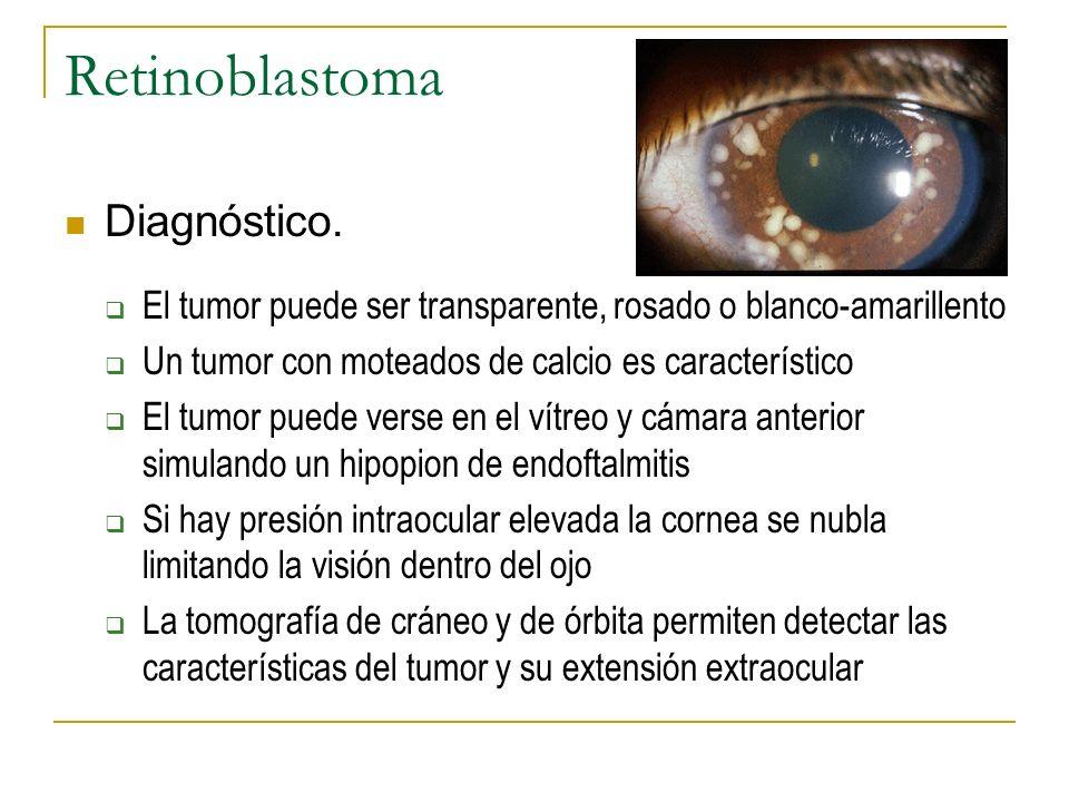 Retinoblastoma Diagnóstico.