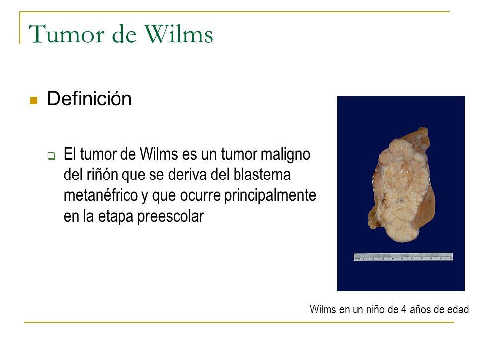 Tumor de Wilms Definición