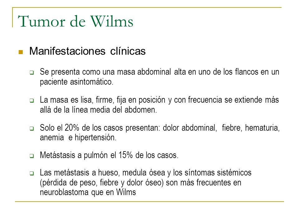 Tumor de Wilms Manifestaciones clínicas