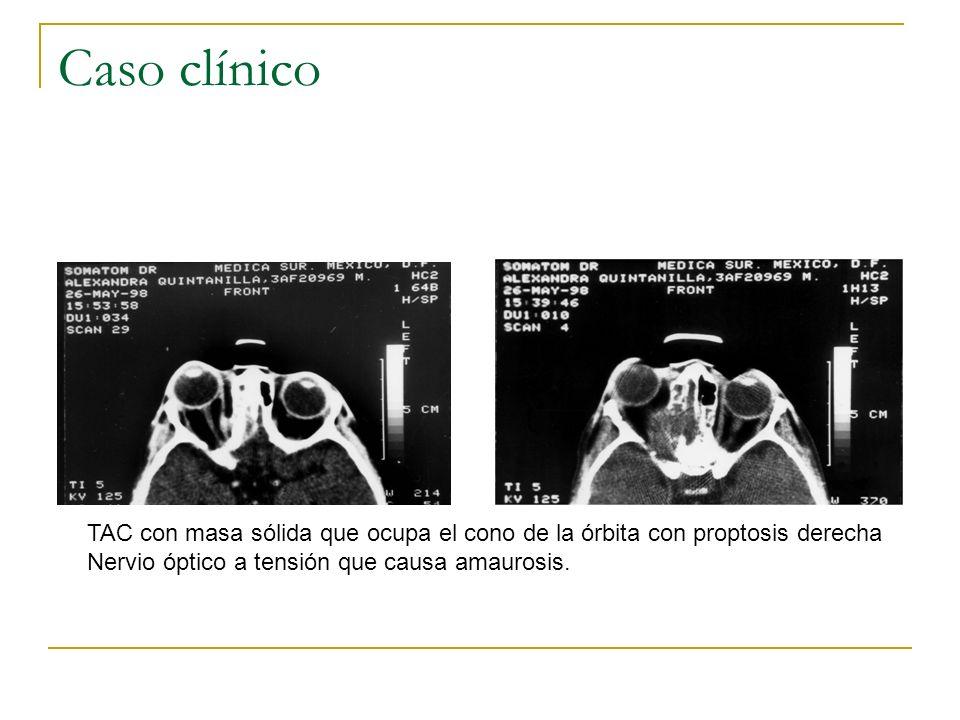 Caso clínico TAC con masa sólida que ocupa el cono de la órbita con proptosis derecha.