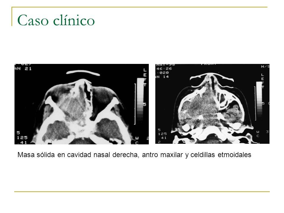 Caso clínico Masa sólida en cavidad nasal derecha, antro maxilar y celdillas etmoidales