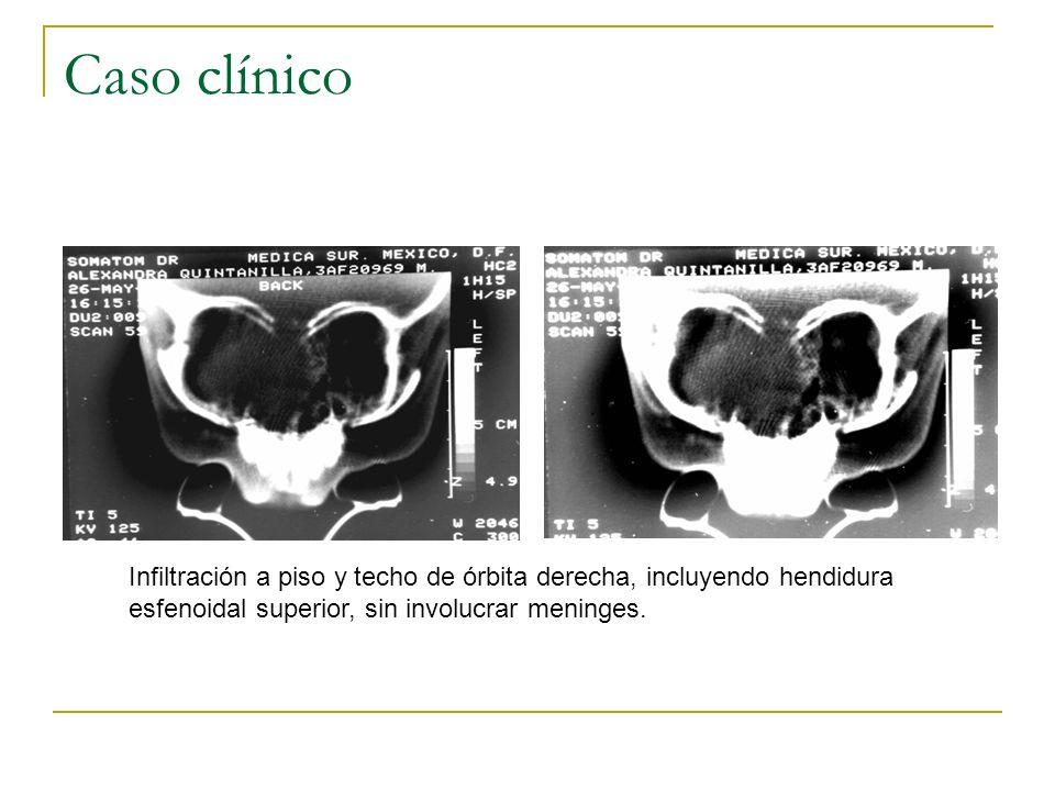 Caso clínico Infiltración a piso y techo de órbita derecha, incluyendo hendidura esfenoidal superior, sin involucrar meninges.