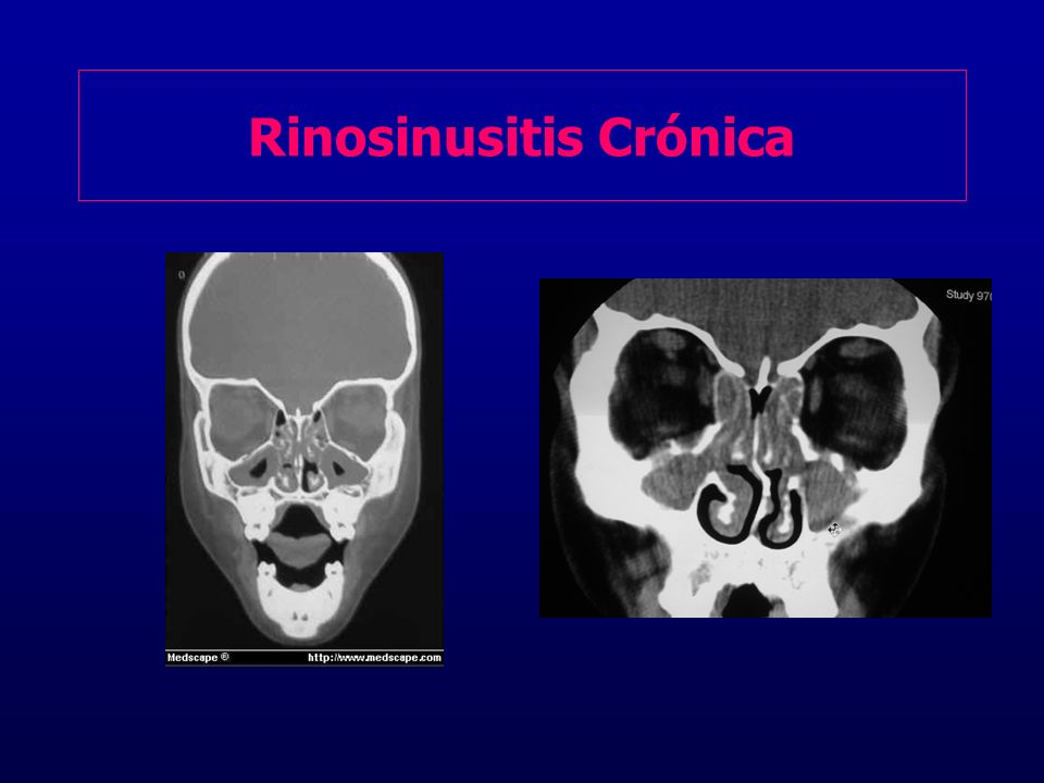 Rinosinusitis Crónica
