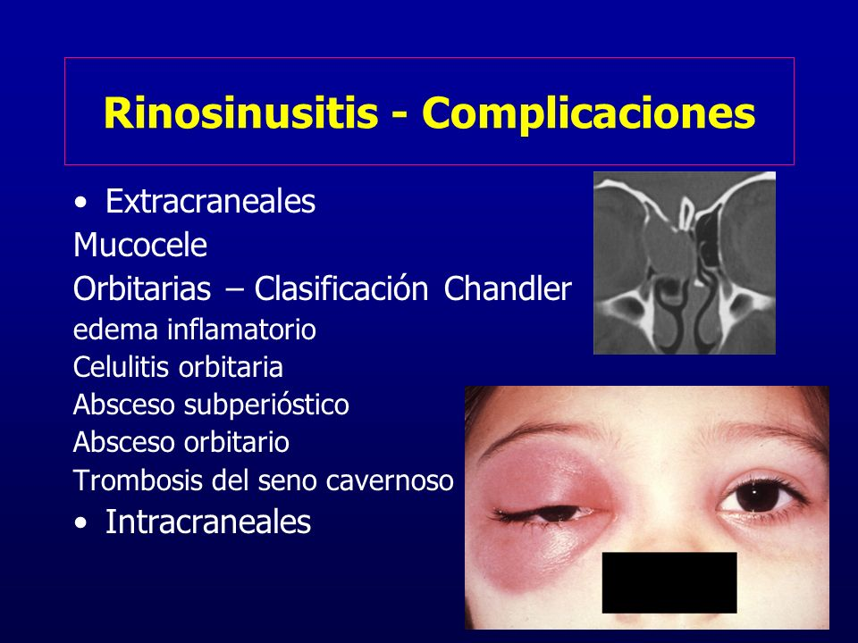 Rinosinusitis - Complicaciones