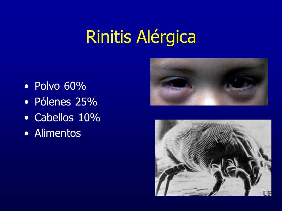 Rinitis Alérgica Polvo 60% Pólenes 25% Cabellos 10% Alimentos