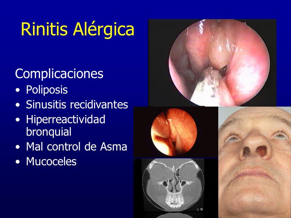 Rinitis Alérgica Complicaciones Poliposis Sinusitis recidivantes