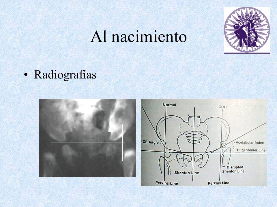 Al nacimiento Radiografías