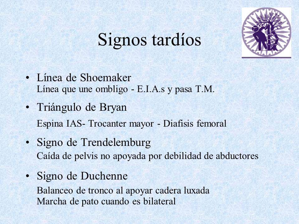 Signos tardíos Línea de Shoemaker Triángulo de Bryan