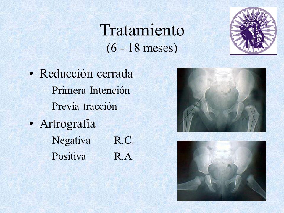 Tratamiento (6 - 18 meses) Reducción cerrada Artrografía