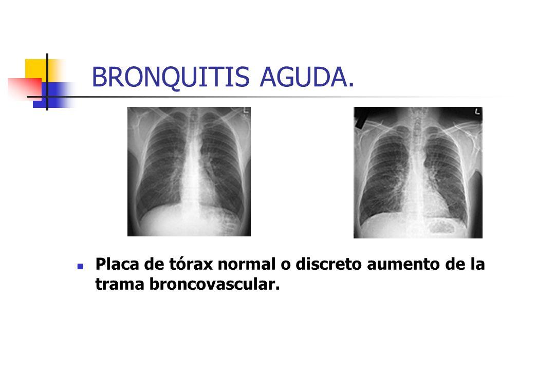 BRONQUITIS AGUDA. Placa de tórax normal o discreto aumento de la trama broncovascular.