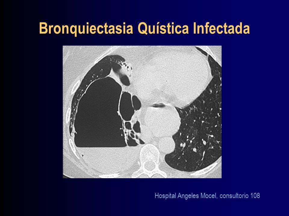 Bronquiectasia Quística Infectada