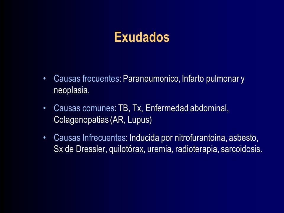 Exudados Causas frecuentes: Paraneumonico, Infarto pulmonar y neoplasia. Causas comunes: TB, Tx, Enfermedad abdominal, Colagenopatias (AR, Lupus)