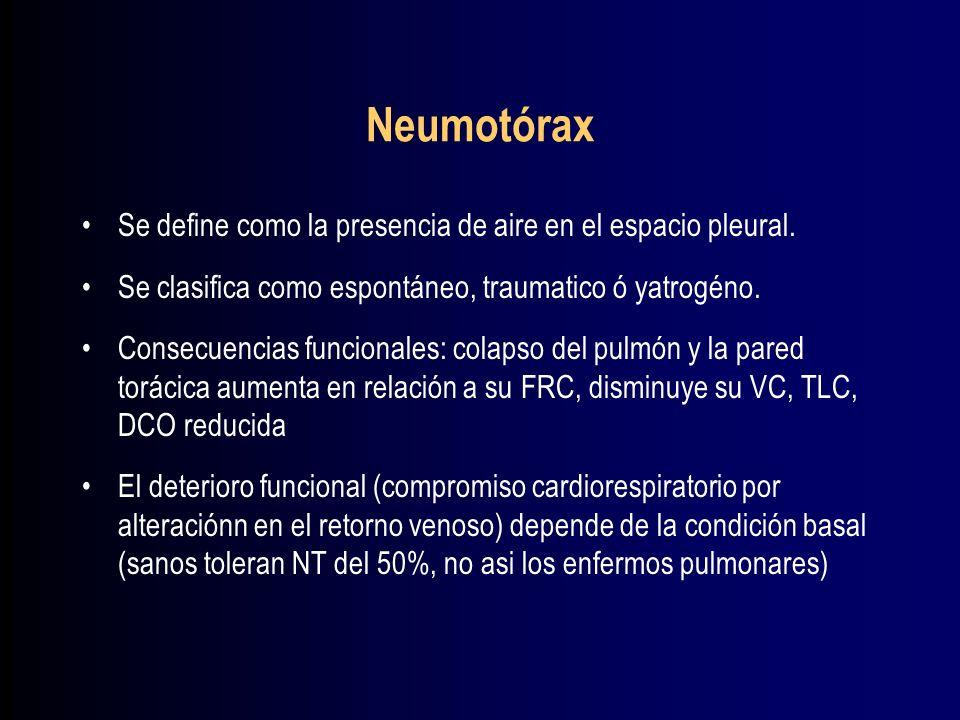 Neumotórax Se define como la presencia de aire en el espacio pleural.