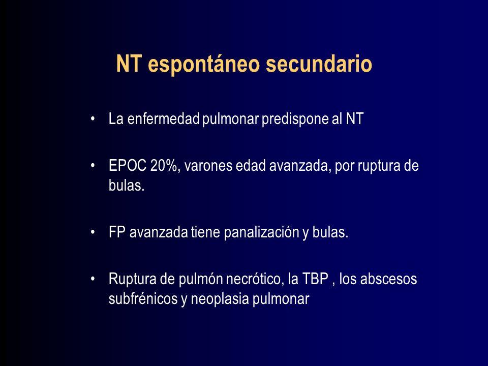 NT espontáneo secundario
