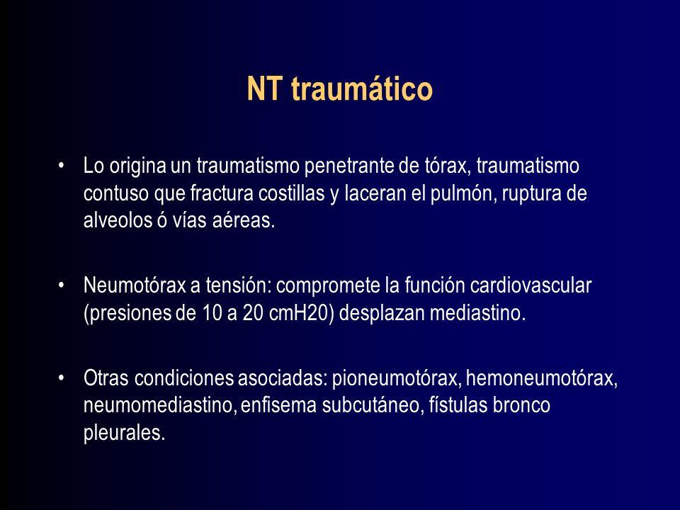 NT traumático