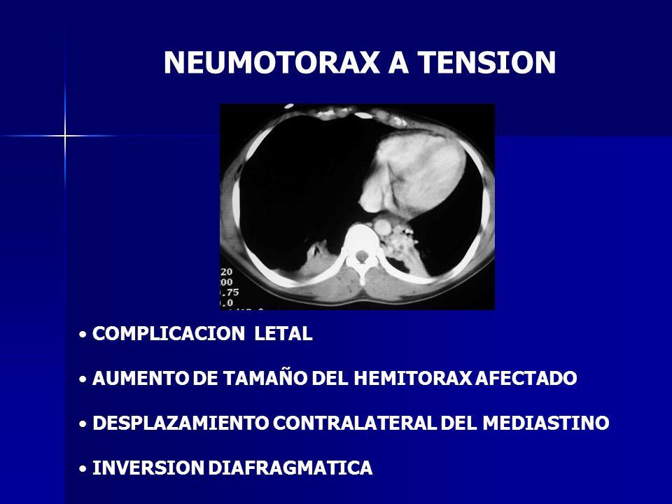NEUMOTORAX A TENSION COMPLICACION LETAL