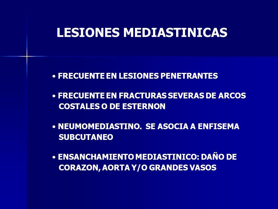LESIONES MEDIASTINICAS