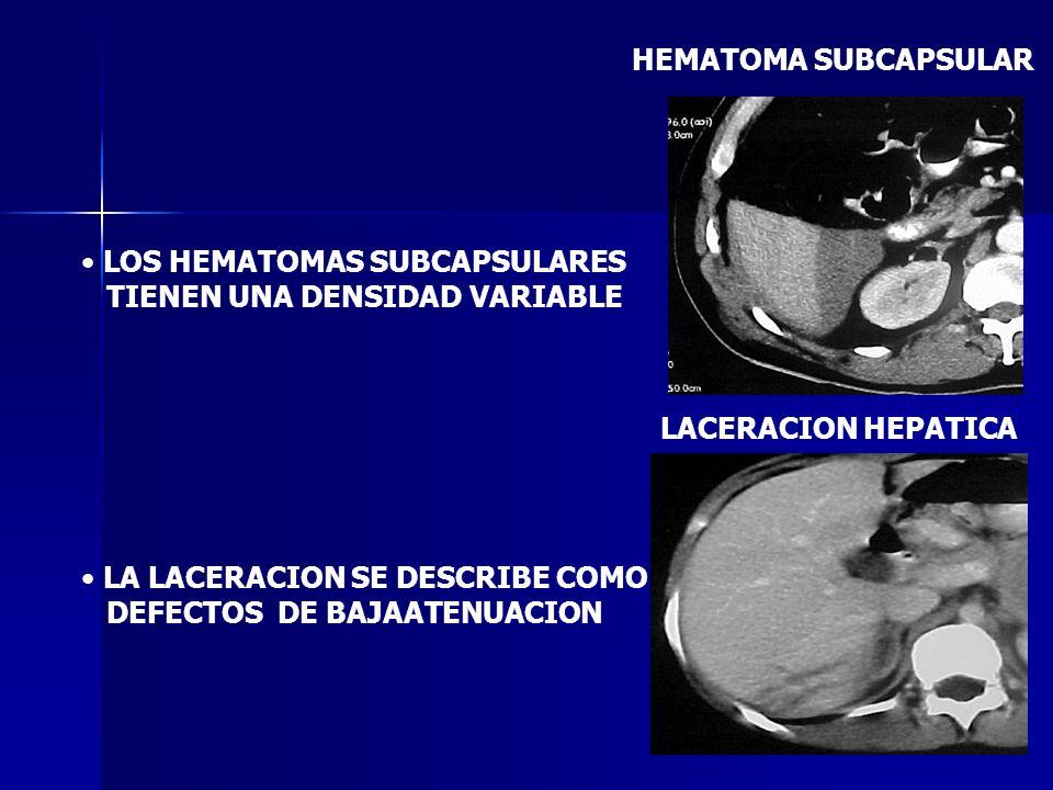 HEMATOMA SUBCAPSULAR LOS HEMATOMAS SUBCAPSULARES. TIENEN UNA DENSIDAD VARIABLE. LA LACERACION SE DESCRIBE COMO.