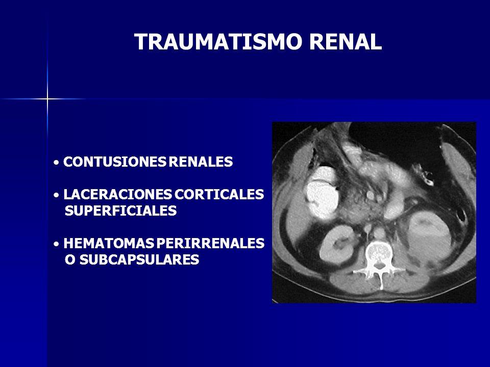 TRAUMATISMO RENAL CONTUSIONES RENALES LACERACIONES CORTICALES