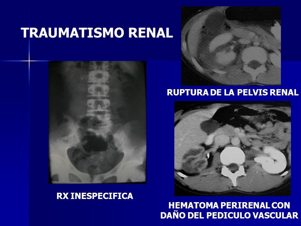 HEMATOMA PERIRENAL CON DAÑO DEL PEDICULO VASCULAR