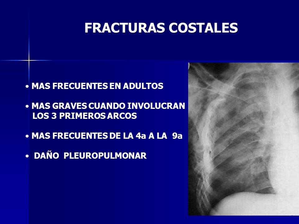 FRACTURAS COSTALES MAS FRECUENTES EN ADULTOS