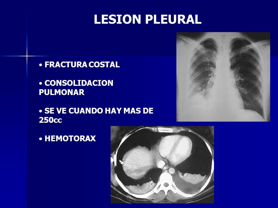 LESION PLEURAL FRACTURA COSTAL CONSOLIDACION PULMONAR
