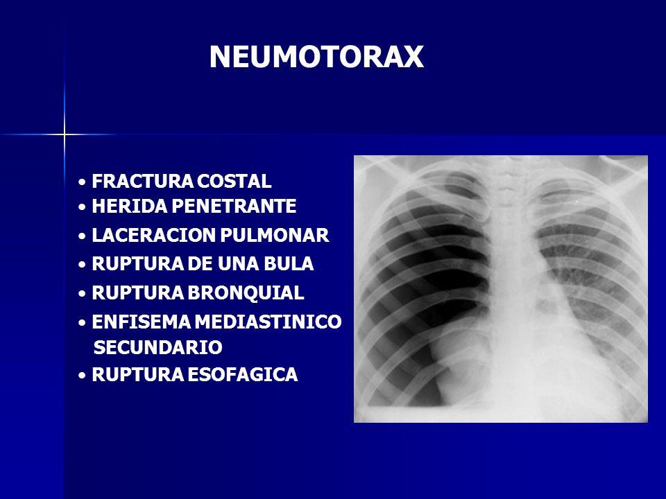 NEUMOTORAX FRACTURA COSTAL HERIDA PENETRANTE LACERACION PULMONAR