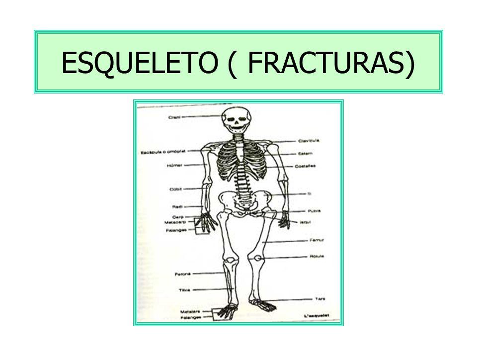 ESQUELETO ( FRACTURAS)