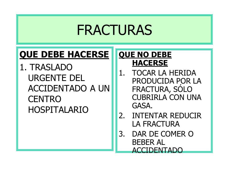 FRACTURAS QUE DEBE HACERSE