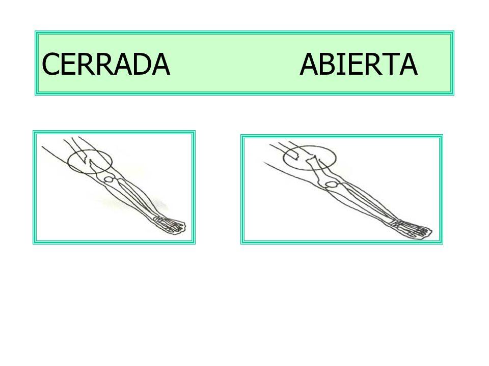 CERRADA ABIERTA
