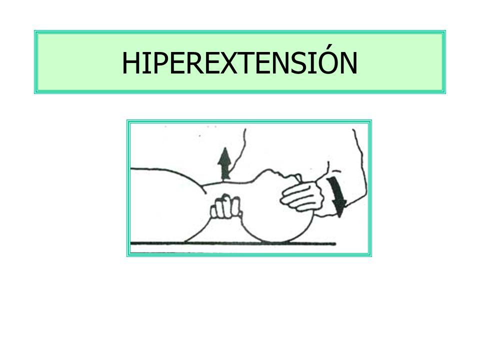 HIPEREXTENSIÓN