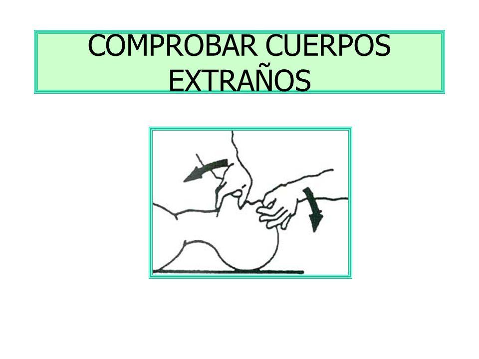 COMPROBAR CUERPOS EXTRAÑOS