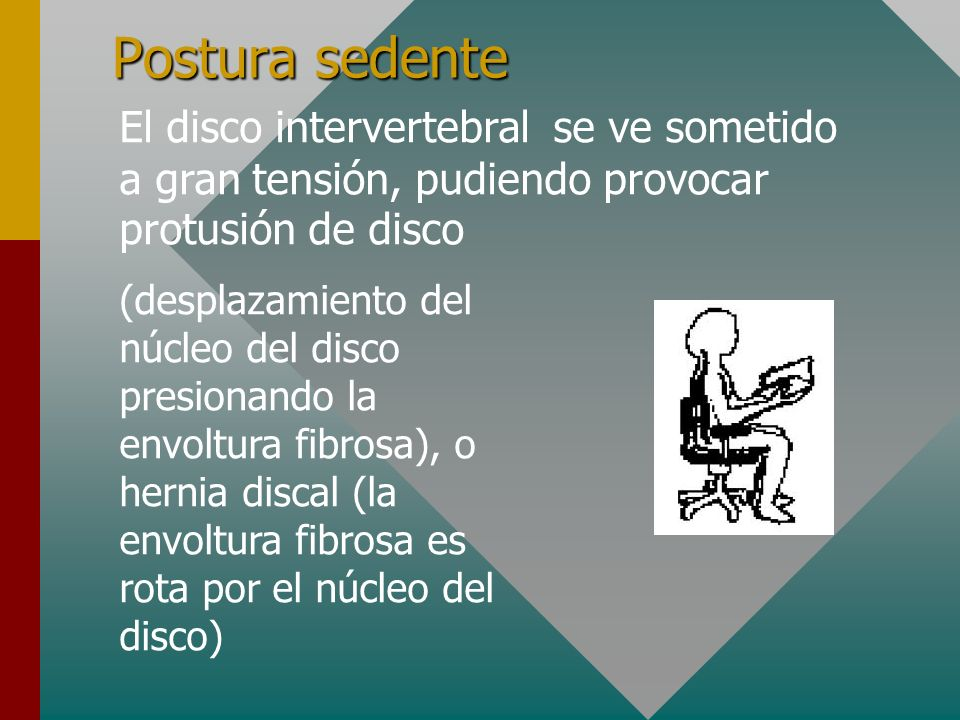 Postura sedente El disco intervertebral se ve sometido